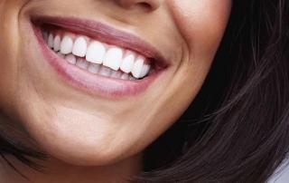 clinica dental ortodoncia Gijón
