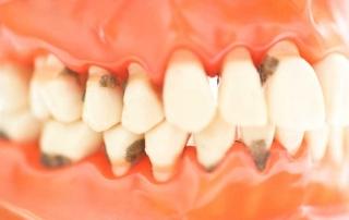 tratamiento periodoncia gijon