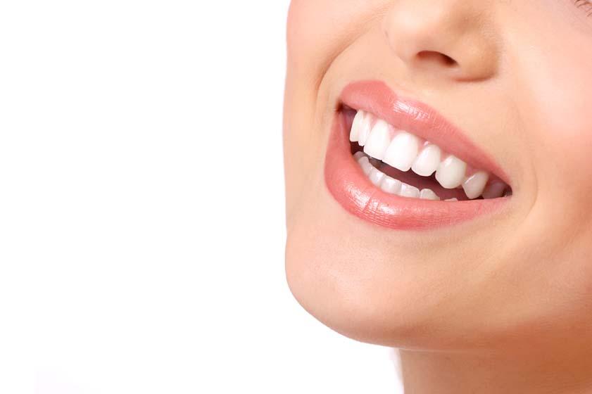 sonrisa dentista Gijón