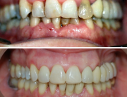 caso de periodontitis y estética dental