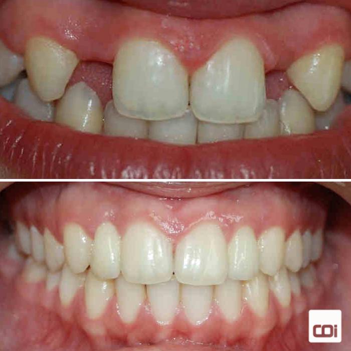 caso de ortodoncia e implantes