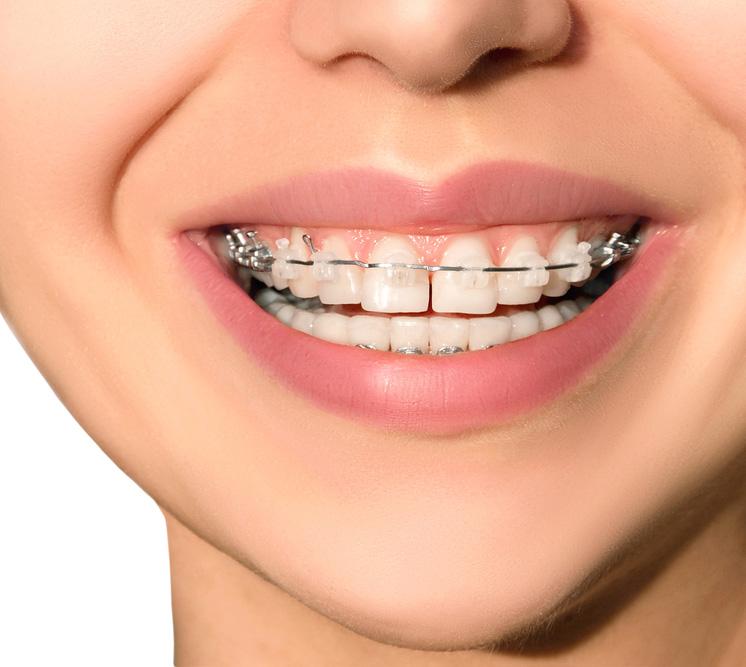ortodoncia gijon