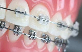 ortodoncia en Gijón