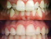 antes y despues ortodoncia imagen frontal