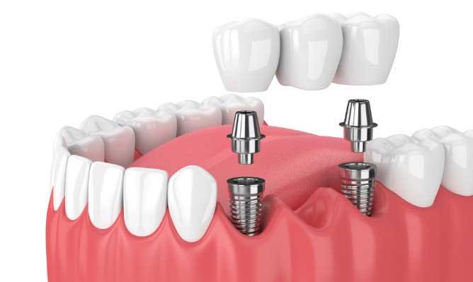 ¿Cuándo están indicados los implantes de carga inmediata?