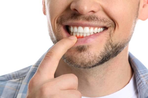 inflamación encías dentista gijon